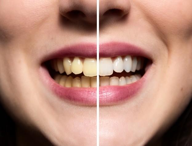 quality dental care in Brenham
