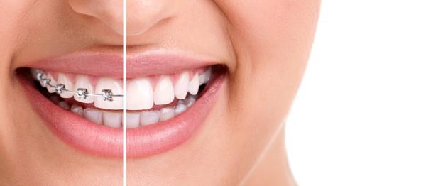 orthodontics in Brenham