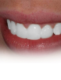 Teeth Whitening Brenham