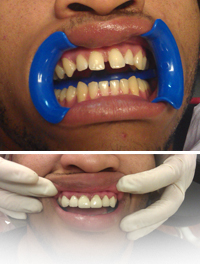 Veneers, Smile Makeover