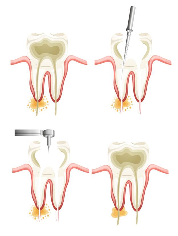root canal dentist Brenham