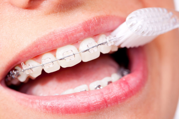 braces dentist brenham